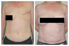 breast reconstruction gallery link
