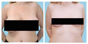 Breast Reduction Page Gallery Link