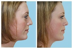 Rhinoplasty Page Gallery Link