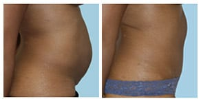 tummy tuck gallery link