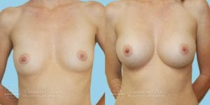 Patient 2a Breast Augmentation Before and After