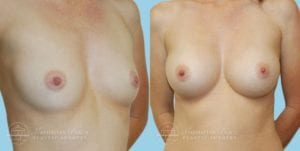Patient 2b Breast Augmentation Before and After