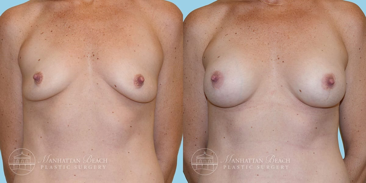 Patient 3a Breast Augmentation Before and After