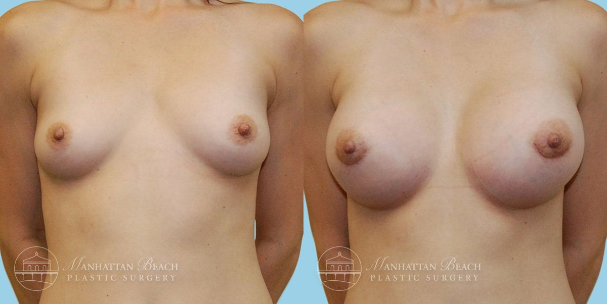 Patient 4a Breast Augmentation Before and After