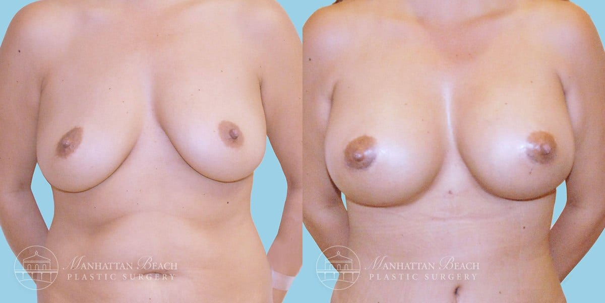 Patient 5a Breast Augmentation Before and After