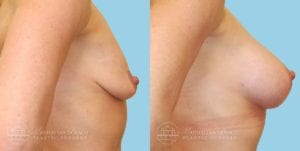 Patient 6c Breast Augmentation Before and After
