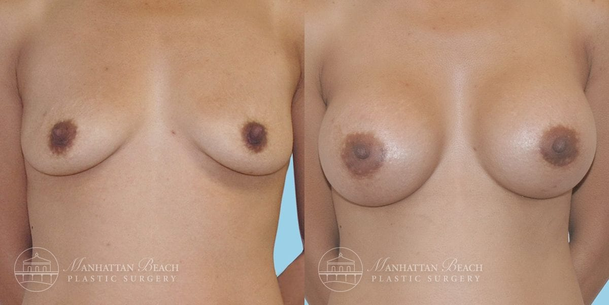 Patient 7a Breast Augmentation Before and After