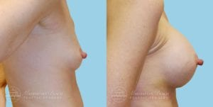 Patient 9c Breast Augmentation Before and After