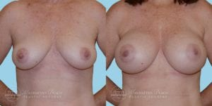 Patient 10a Breast Augmentation Before and After