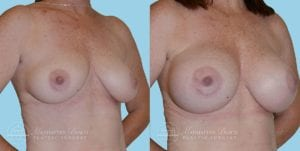 Patient 10b Breast Augmentation Before and After
