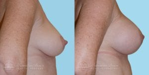 Patient 10c Breast Augmentation Before and After