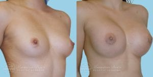 Patient 11b Breast Augmentation Before and After