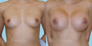 Patient 11c Breast Augmentation Before and After