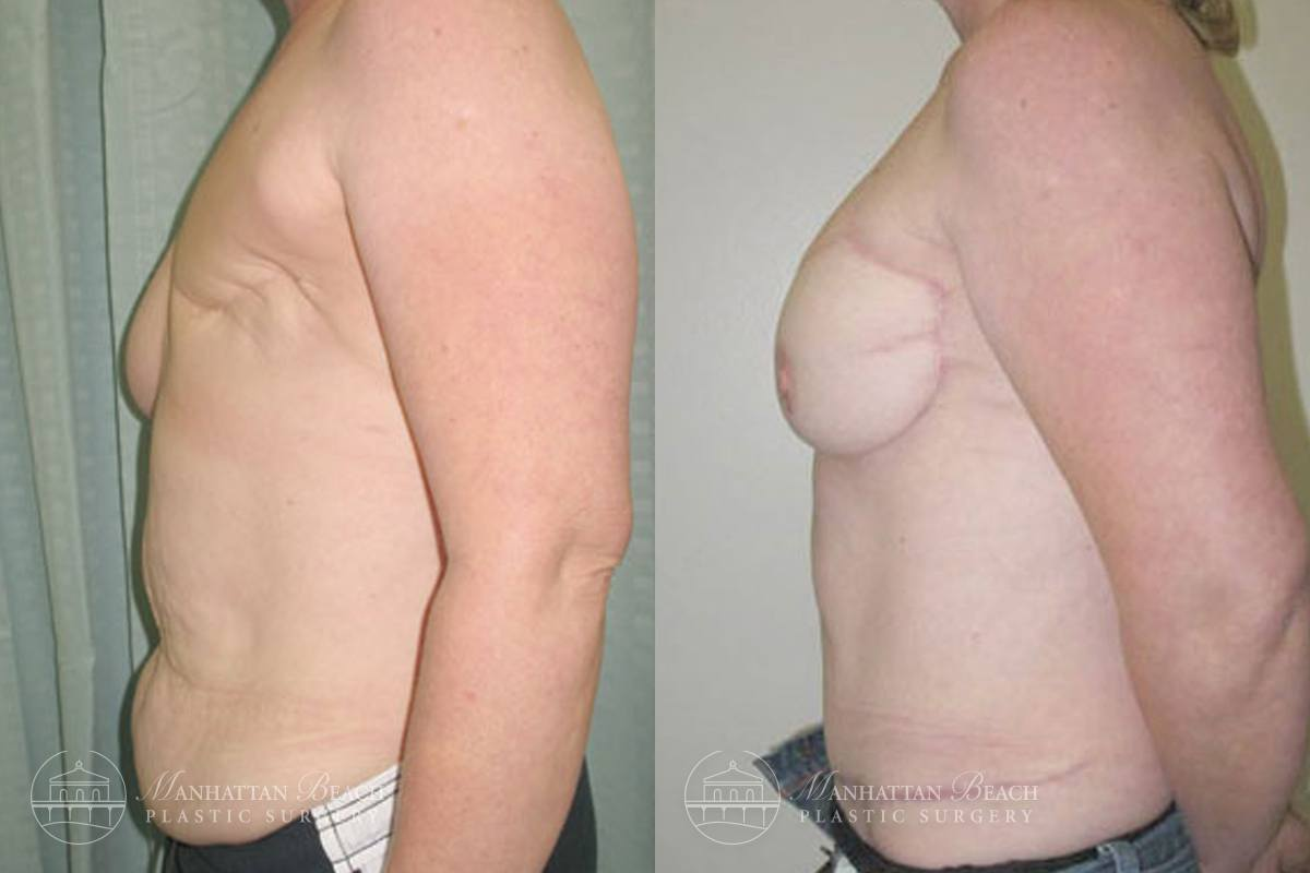 Patient 4a Before and After Breast Reconstruction