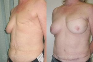 Patient 4b Before and After Breast Reconstruction