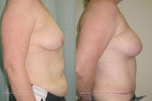 Patient 4c Before and After Breast Reconstruction