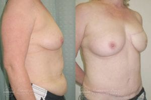 Patient 4d Before and After Breast Reconstruction