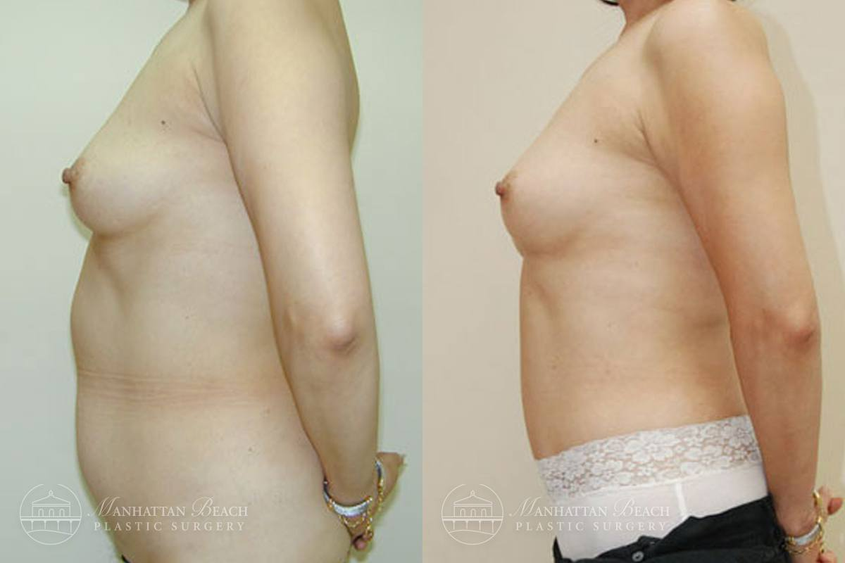 Patient 5a Before and After Breast Reconstruction