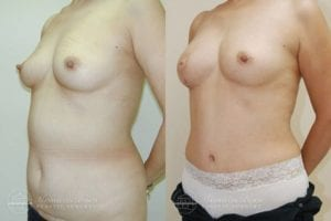 Patient 5b Before and After Breast Reconstruction