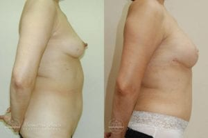 Patient 5c Before and After Breast Reconstruction