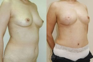 Patient 5d Before and After Breast Reconstruction