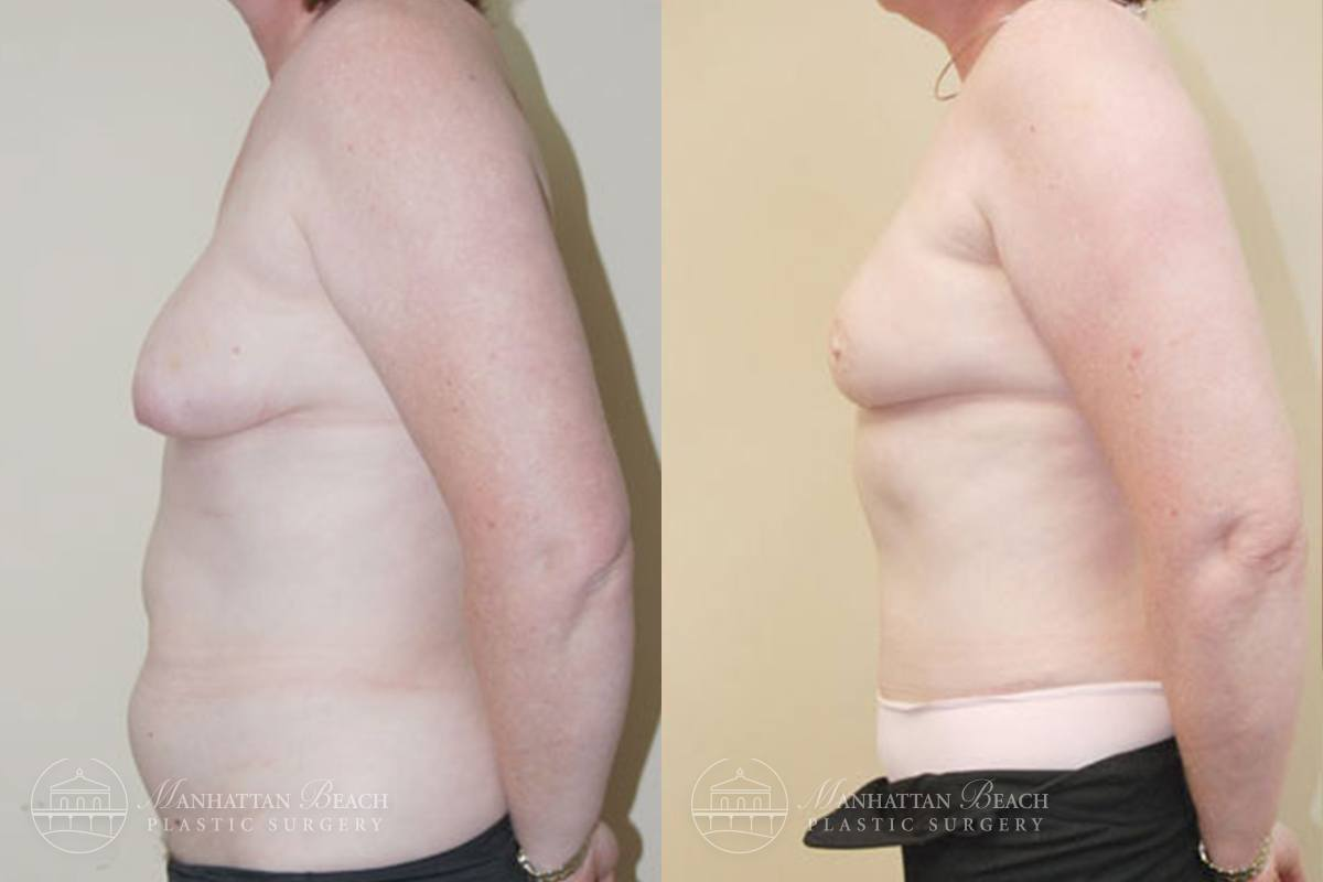 Patient 6a Before and After Breast Reconstruction