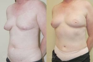 Patient 6b Before and After Breast Reconstruction