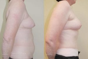 Patient 6c Before and After Breast Reconstruction