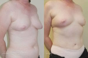 Patient 6d Before and After Breast Reconstruction