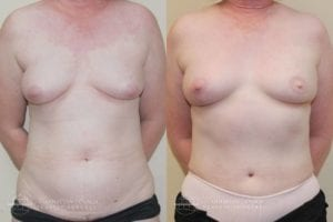 Patient 6e Before and After Breast Reconstruction