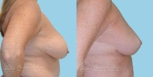 Patient 1c Breast Reduction Before and After