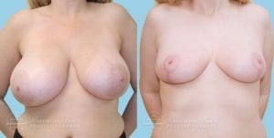 Patient 2a Breast Reduction Before and After