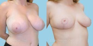 Patient 2b Breast Reduction Before and After