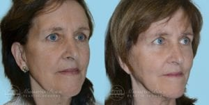 Patient 1b Before and After Facelift