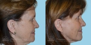 Patient 1c Before and After Facelift