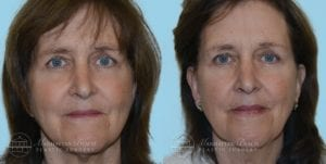 Patient 1a Before and After Facelift