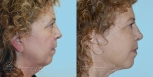 Patient 2c Before and After Facelift