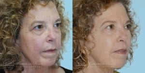 Patient 2b Before and After Facelift