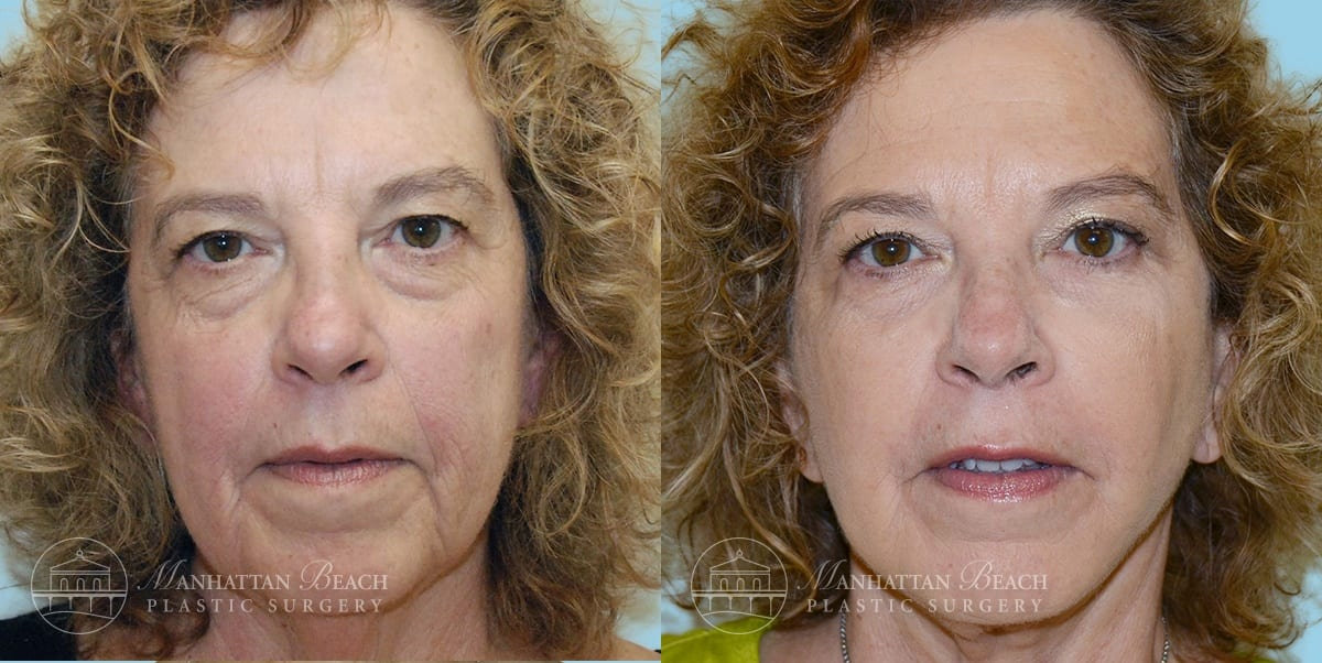 Patient 2a Before and After Facelift
