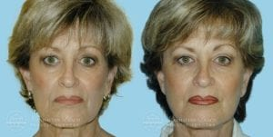 Patient 3a Before and After Facelift
