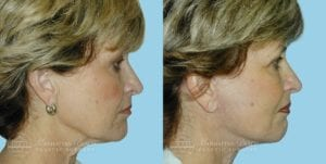 Patient 3b Before and After Facelift