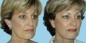 Patient 3c Before and After Facelift