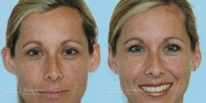 Patient 2b Before and After Otoplasty