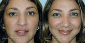 Patient 1a Before and After Rhinoplasty