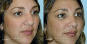 Patient 1b Before and After Rhinoplasty