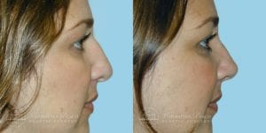 Patient 1c Before and After Rhinoplasty
