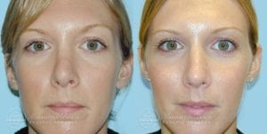 Patient 2a Before and After Rhinoplasty
