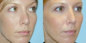 Patient 2b Before and After Rhinoplasty