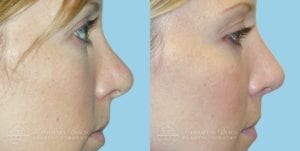 Patient 2c Before and After Rhinoplasty
