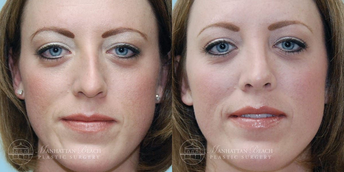 Patient 3a Before and After Rhinoplasty